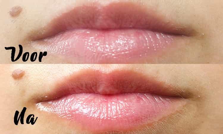 Filorga-Nutri-Filler Lips