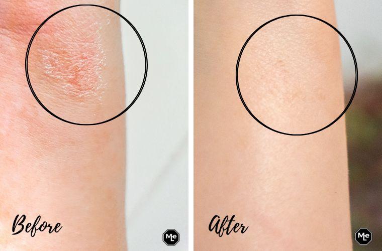 voor en na foto's Bio-Oil Droge Huid Gel.
