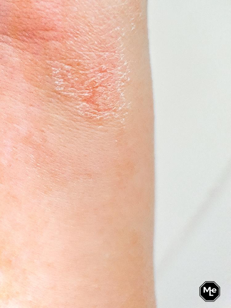 eczeem/droge huid voor behandeling met de Droge Huid Gel