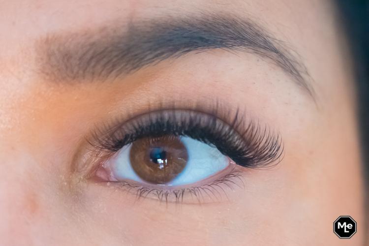 after eye serum